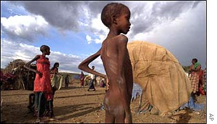 A malnourished child at an Ethiopian feeding station