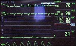 Monitor heart