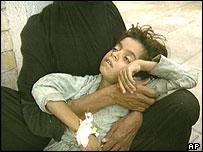 A sick child in Iraq