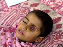 Southern Iraq: A four-year-old boy suffering from a tumour in his eye