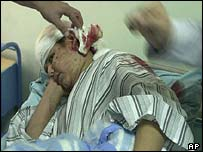 A boy is treated in al-Noumen hospital