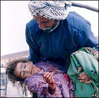 Wounded girl in Basra