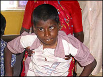 Boy severely affected by fluorosis
