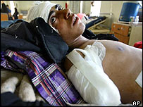 Basim Haydar Hassoon, 17, suffered hand and head wounds in an apparent grenade attack in fighting between Arabs and Kurds