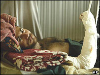 Injured man in Basra hospital which is suffering shortages
