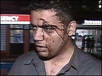 Shahid Malik was injured during the Burnley riots