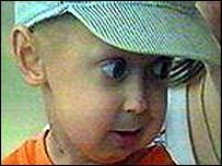 A child with progeria