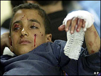 Wounded boy in Mosul