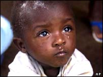 Child amputee in Sierra Leone