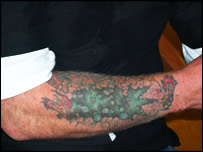 The tattoo on Mr Davies' arm