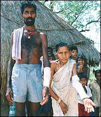 Low caste Hindus show their bandages