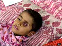 Iraqi child with eye tumour   AP