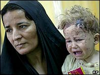 Beidah Khasal holds her 18-month-old daughter Zeynap Thamer, wounded by shrapnel when an arms dump exploded