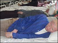 Albino ward