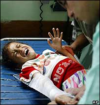 A nine-year-old Palestinian girl receives treatment after being wounded in Israeli helicopter attack in Gaza