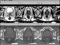 Scans of the prostate gland
