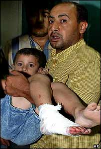 Man carries a child wounded by shrapnel, Gaza City