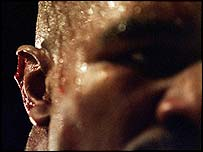 Evander Holyfield after Mike Tyson bit a piece of his ear off in their 1997 bout