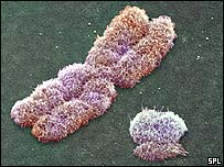 X and Y chromosomes, SPL
