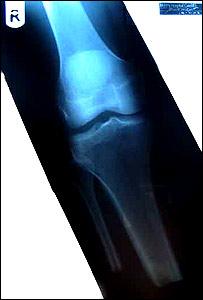 Stuart Hughes x-ray