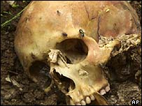 Skull of victim from a massacre in Podujevo