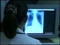 Chest x-ray - generic