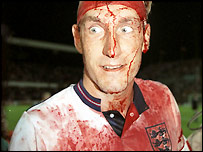 Terry Butcher cuts his head but plays on despite his shirt changing colour