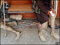 Mohammad Wali Gul, 25, tries a new pair of artificial legs in Kabul, following his landmine accident 15 years ago