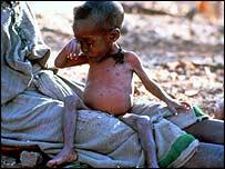 Ni�o desnutrido en Etiop�a  (AP)