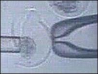 Técnicas de clonación