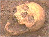 A skull found at the site at Hereford County Hospital