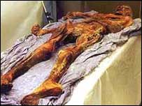 Preserved body of Otzi, the 5,000-year-old Ice Age hunter 