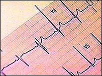 ECG printout