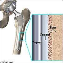 Hip replacement image - (copyright http://www.medicalmultimediagroup.com)