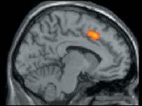 Imagen cortesía de la Revista Science.