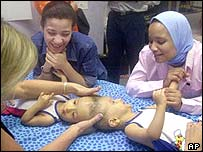 Nurses Wafaa Dardig and Naglaa Mahmoud look on as physical therapist Sally Fryer works on the twins