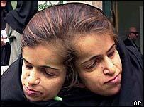 The Bijani twins