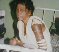 Tortured Sri Lankan maid (file pic)