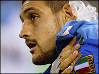 Italy lock Marco Bortolami suffered a dislocated shoulder against Canada