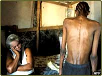 South African Aids patient