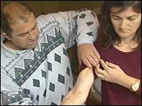 Albanian family show scars from boiling water