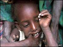Malnourished child in Dalaad, Ethiopia, during the 2000 famine