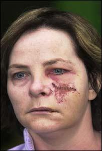 Denise Butler after leaving hospital