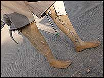Chum Sakhorn's artificial legs (photo courtesy of Sean Sutton/MAG)