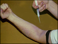 A drug addict prepares to inject