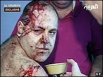 Victim of Saturday's bombing