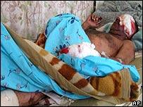 Injured Iraqi in Nasiriya hospital