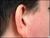 Ear generic