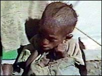 Ethiopian child in 1984 famine