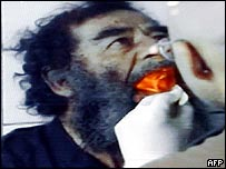 US doctors examine Saddam Hussein's teeth